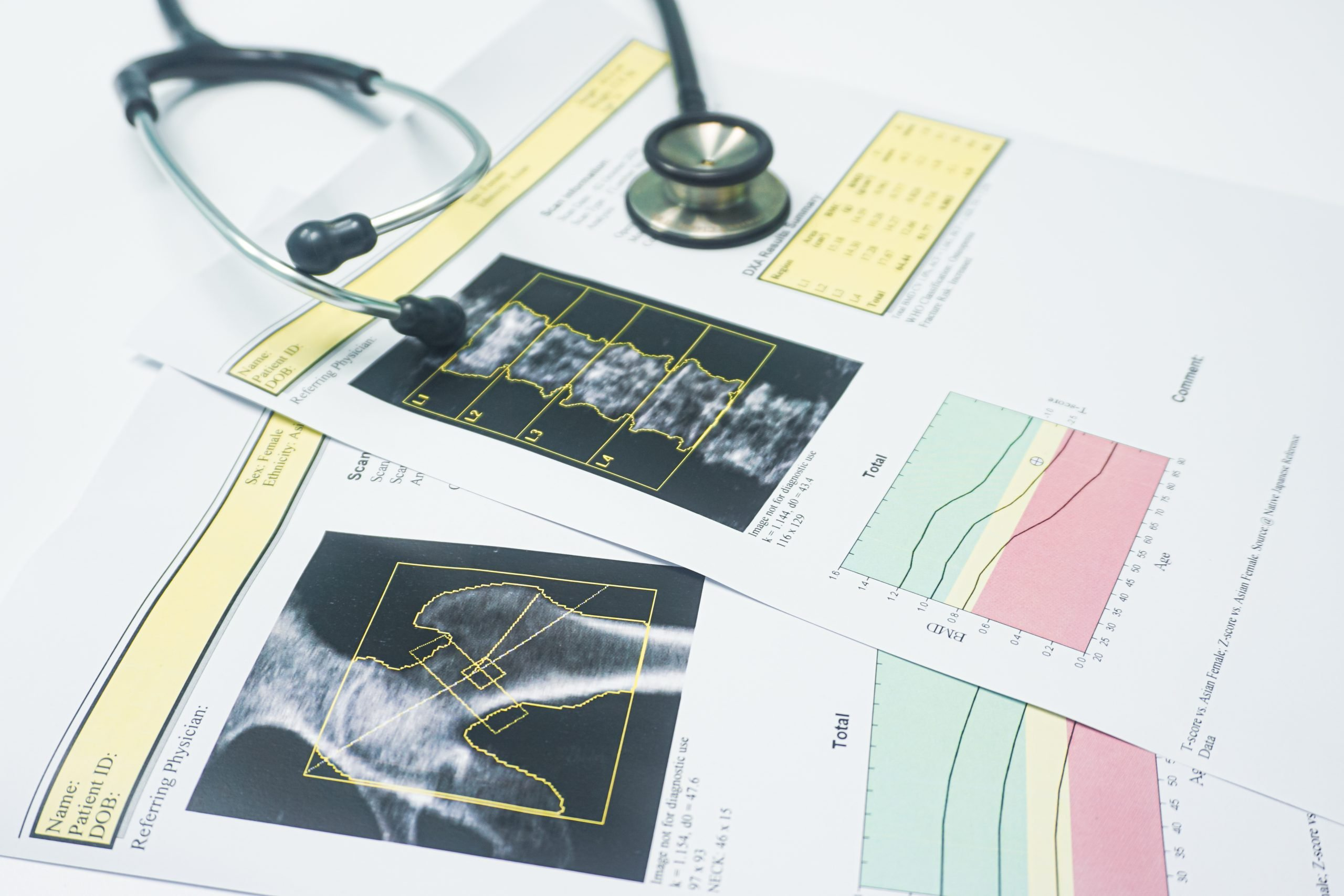 Bone Mineral Density Flagstaff - Dr. Erin Winter